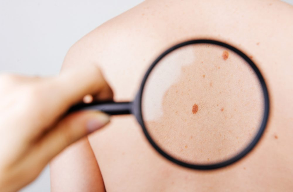 DermaDetect enables to diagnose skin conditions using a dedicated, AI-based app. Photo by Vulp via Shutterstock.com